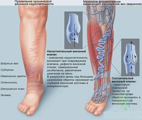 Почему болят ноги и что сделать, чтобы полегчало - Лайфхакер 33