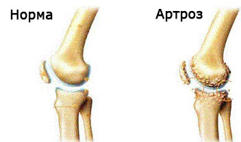 Гимнастика сустав артрит артроз избавление суставов от соли